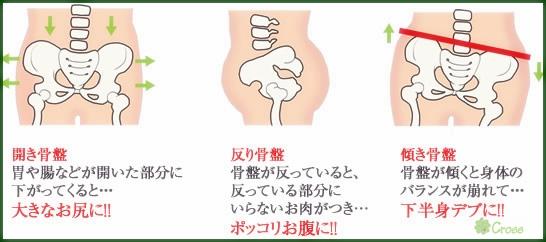 クロス骨盤矯正2