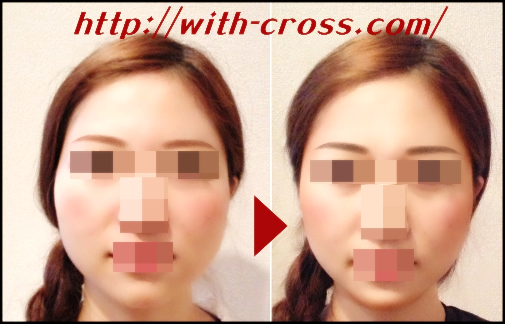 crossfacebeforeafter